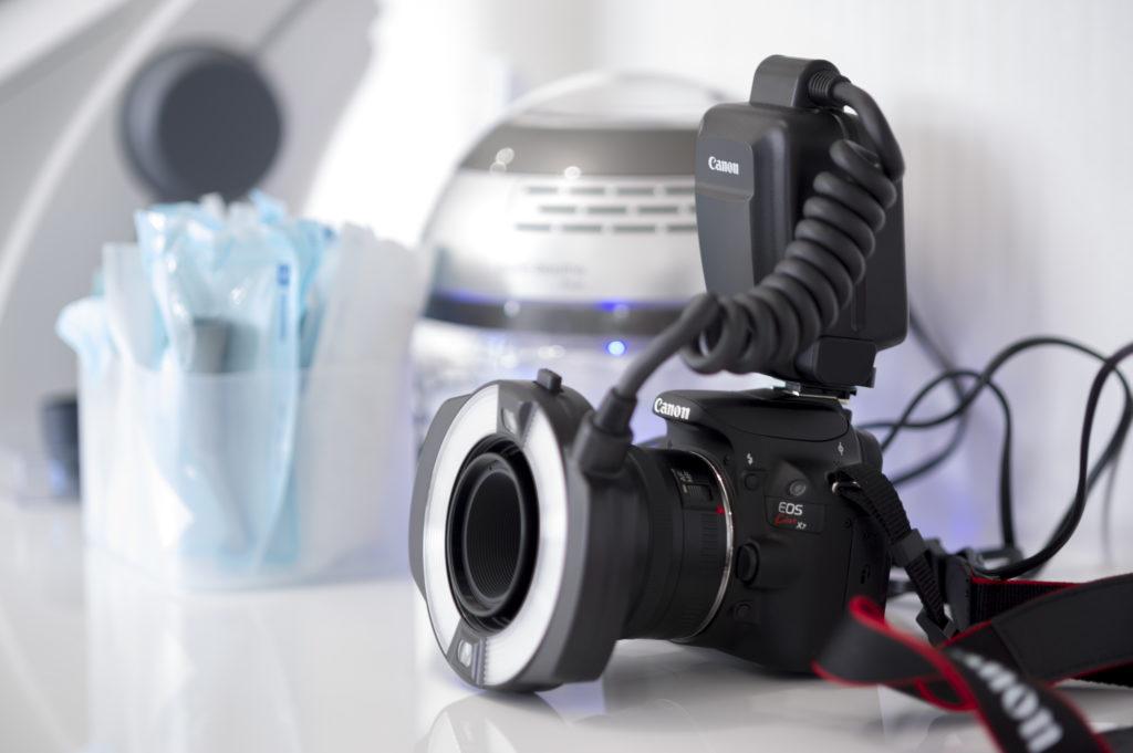 口腔内撮影用カメラ