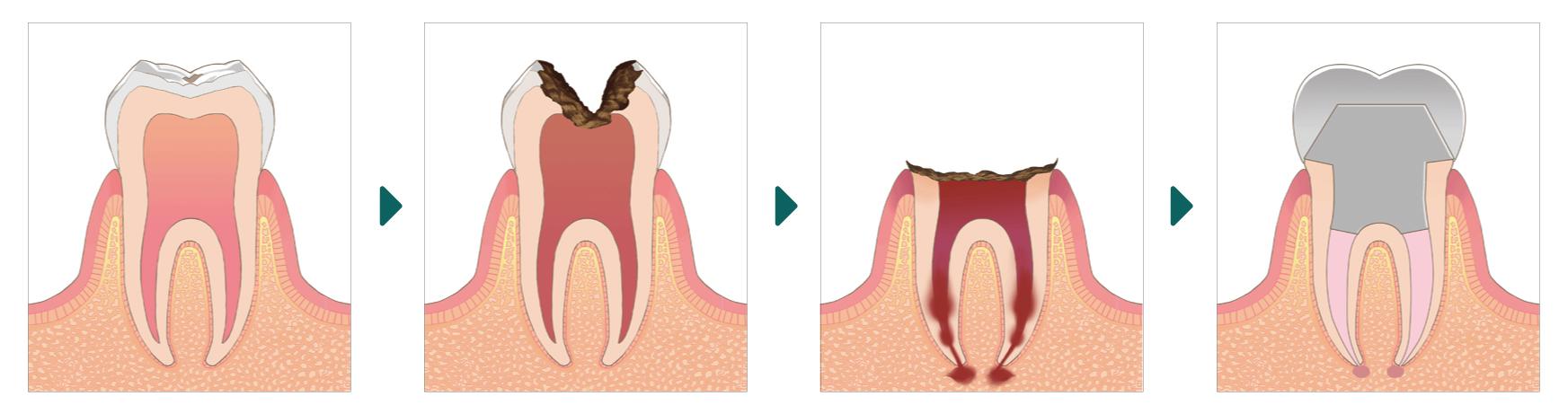 虫歯の進行